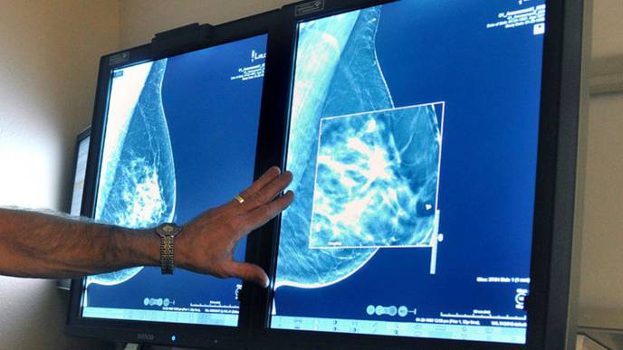 Breast Cancer Care Becomes Troubling Casualty of the Coronavirus