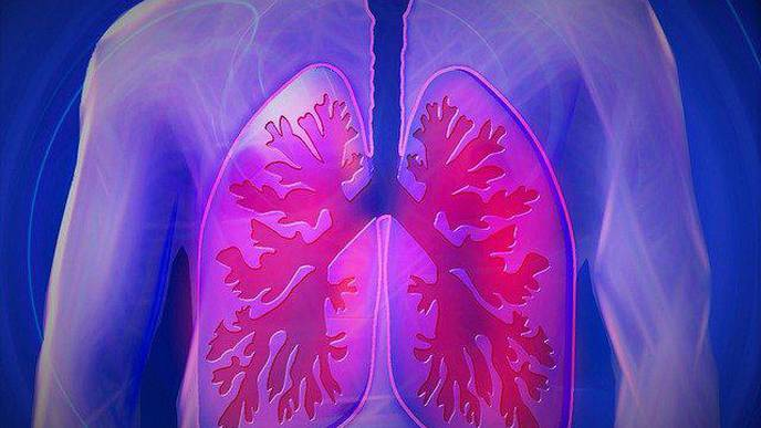 Study: Atezolizumab Extends Disease-Free Survival by More than One-Third in Subset of Patients with Lung Cancer
