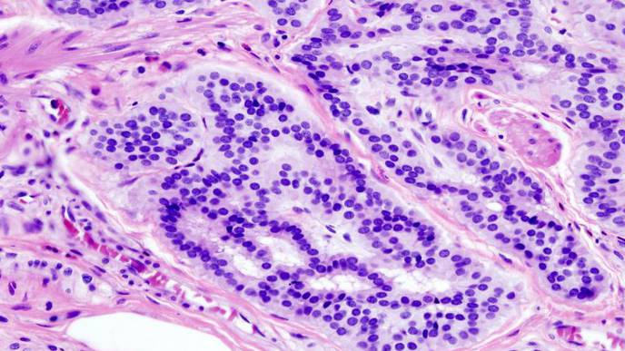 How Novel Pathogens May Cause the Development of Colorectal Cancer