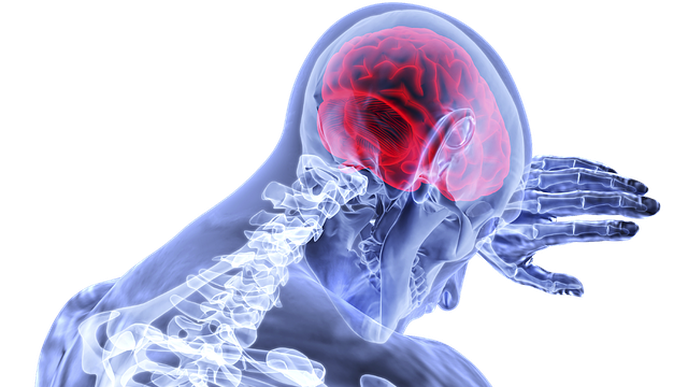 Stroke Scans Could Reveal COVID-19 Infection