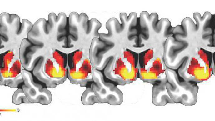 NIH-Funded Study Links Adolescent  Brain Differences to Increased Waist Circumference
