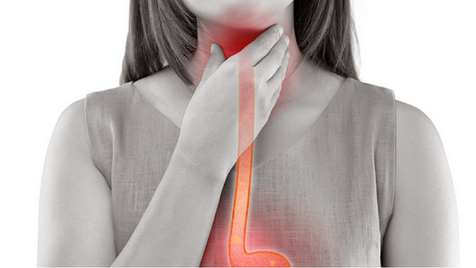 Untreated Eosinophilic Esophagitis Is a Progressive Disorder