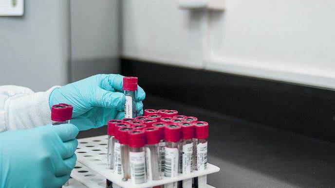 Noninvasive Blood Test Tracks Organ Injury from COVID-19