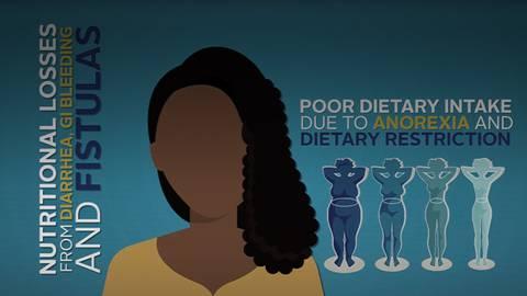 Raise Your IBD Nutritional Awareness