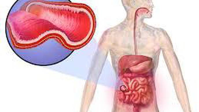 Serious Complication of Crohn's Disease May Be Preventable in Young People