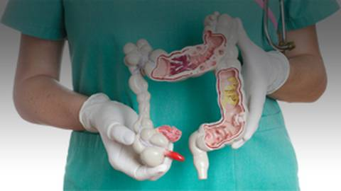Key Surgical Indications for IBD Patients