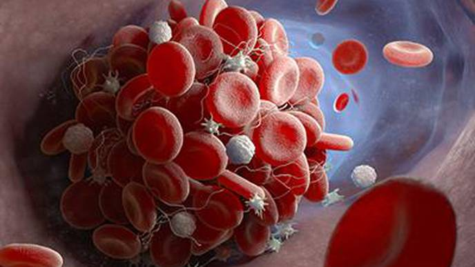 COVID-19 Causes Hyperactivity in Blood-Clotting Cells