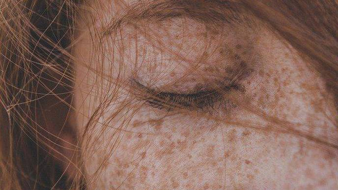 Facial Pigmentation Impacts Quality of Life Regardless of Clinical Severity