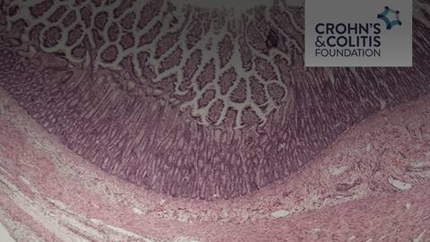 Virtual IBD Clinic: Disease Management and Surgery